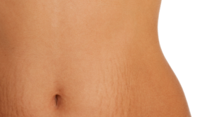 Stretch Marks – A Harsh Reality of Life